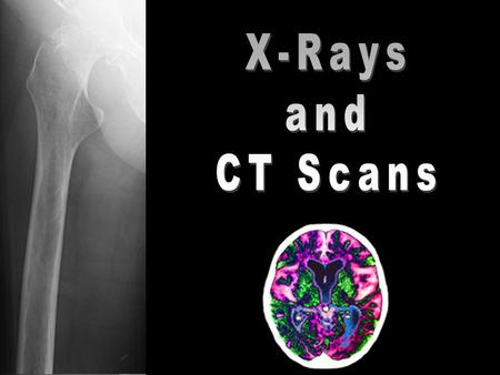 X-Rays were discovered accidentally in 1895 by Wilhelm Conrad Röntgen Due to their short wavelength, on the order of magnitude of cells, and their high.