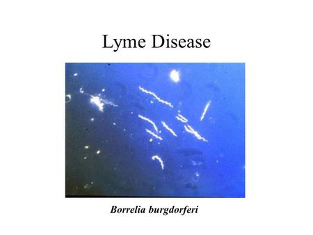 Lyme Disease Borrelia burgdorferi. Species Area Curves S = CA Z (log S) = Z (log A) + (log C) From: Gotelli, N. J. 1995. A primer of ecology. Sunderland,