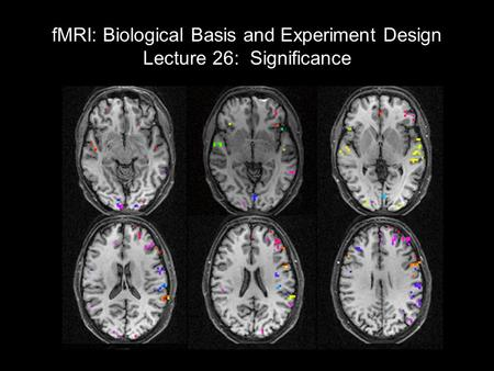 FMRI: Biological Basis and Experiment Design Lecture 26: Significance Review of GLM results Baseline trends Block designs; Fourier analysis (correlation)