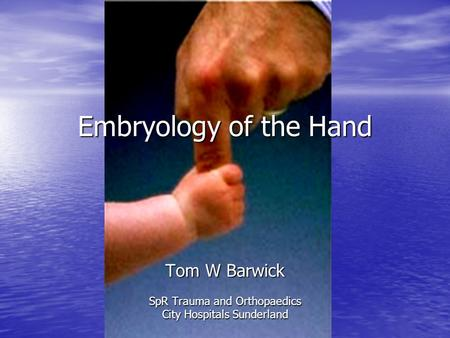 Embryology of the Hand Tom W Barwick SpR Trauma and Orthopaedics City Hospitals Sunderland.