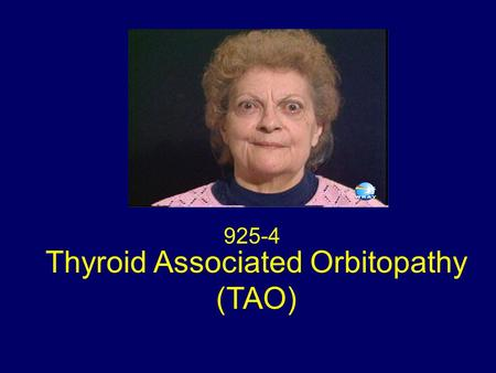 Thyroid Associated Orbitopathy (TAO) 925-4. Classical Signs : TAO A prominent stare. Retraction of all four eyelids Bilateral exophthalmos Hertel exophthalmometer.