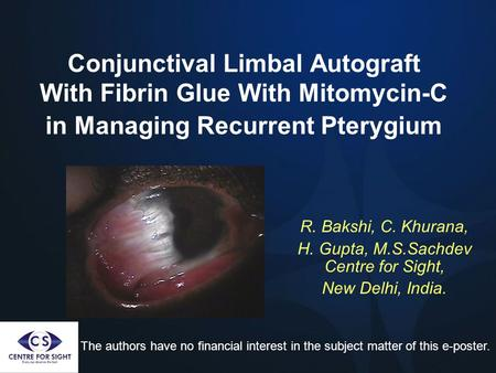 Conjunctival Limbal Autograft With Fibrin Glue With Mitomycin-C in Managing Recurrent Pterygium R. Bakshi, C. Khurana, H. Gupta, M.S.Sachdev Centre for.