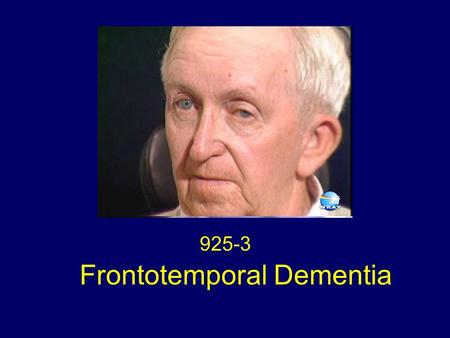 Frontotemporal Dementia 925-3. Eye Movements This patient with frontotemporal dementia (FTD) has a complete paralysis of horizontal saccadic eye movements.