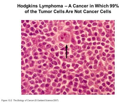 Figure 13.2 The Biology of Cancer (© Garland Science 2007) Hodgkins Lymphoma – A Cancer in Which 99% of the Tumor Cells Are Not Cancer Cells.