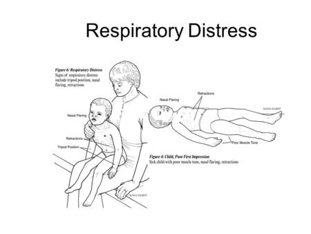 Respiratory Distress. Pediatric Respiratory System Large head, small mandible, small neck Large, posteriorly- placed tongue High glottic opening Small.