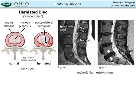 "Heritage College of Osteopathic Medicine Herniated Disc (""slipped disc"") back1.com myhealth.barnesjewish.org normalherniated anulus fibrosus nucleus pulposus."
