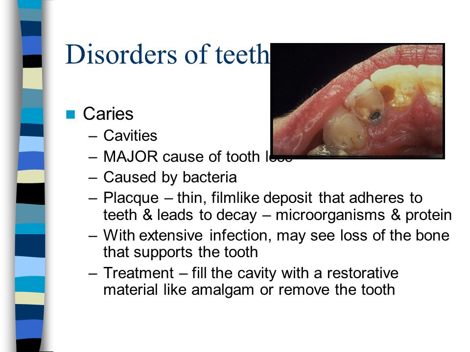 Disorders of teeth (cont) Periodontitis –Affects 90% of adults in U.S.