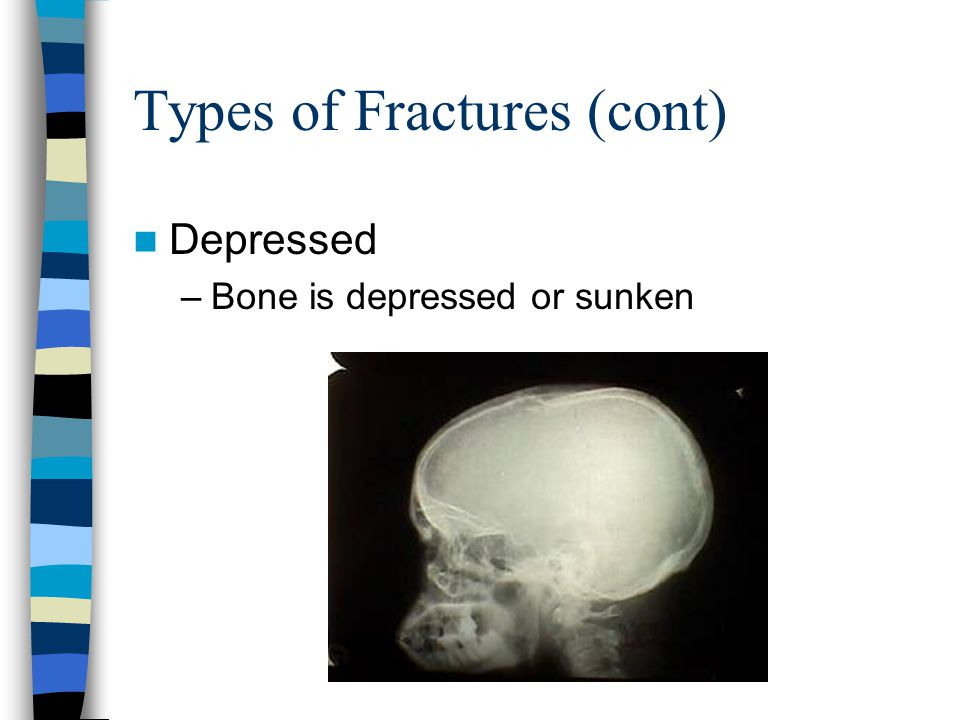 Types of fractures (cont) Avulsion –Occurs when a ligament or tendon pulls off part of a bone during an injury –Ankles, legs, hip, upper arm common –Small fracture may not require treatment & may not hurt –Large fracture may require surgical attachment