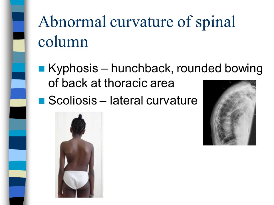 Abnormal Curvature Lordosis – swayback, inward curvature of lumbar region