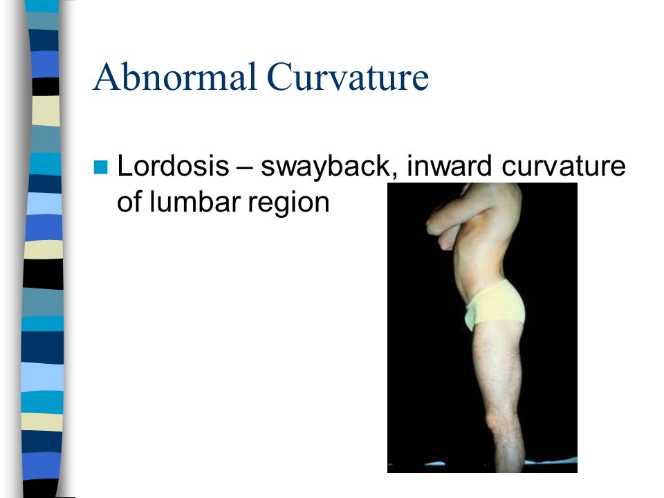 Abnormal Curvature (cont) Causes – –Poor posture –Congenital defects –Structural defects –Malnutrition –Degeneration of vertebrae Treatment –Therapeutic exercises –Firm mattresses –Braces –May require surgery if severe