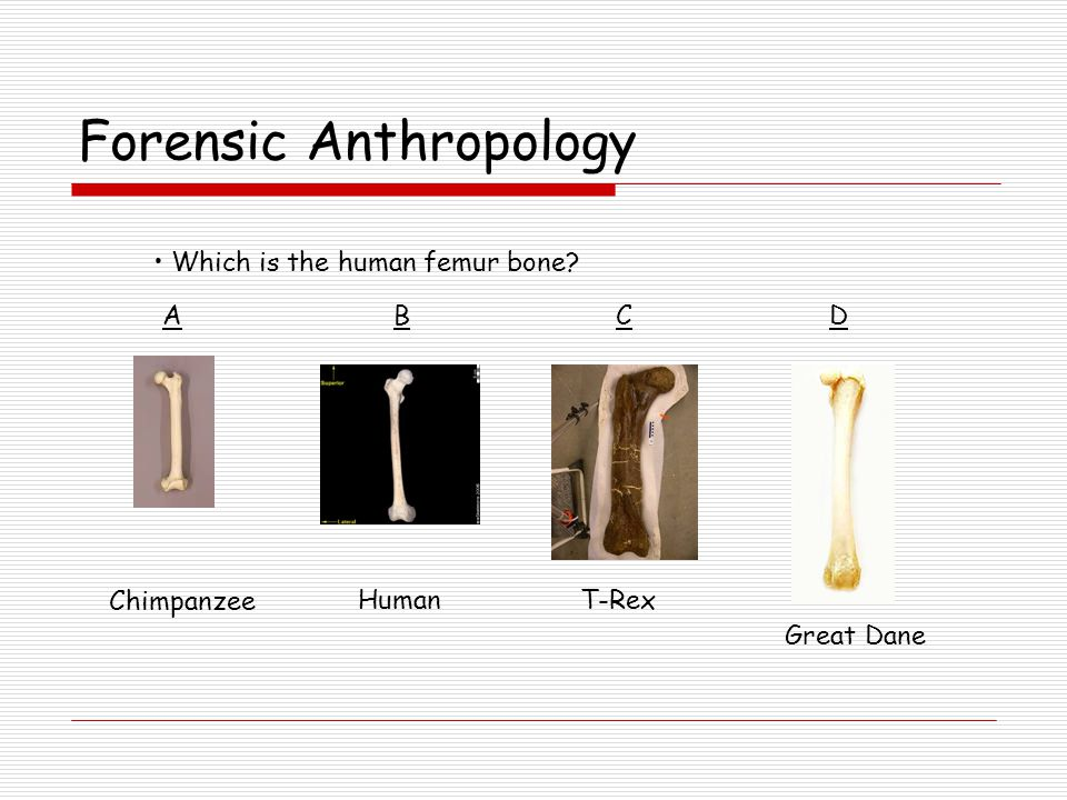 Forensic Anthropology Was the person male or female.