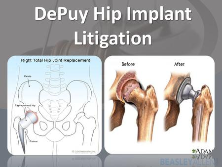 DePuy Hip Implant Litigation. DePuy Hip Implant Recall DePuy Orthopaedics is the subsidiary of Johnson & Johnson. 8/24/2010 – DePuy Orthopaedics voluntarily.