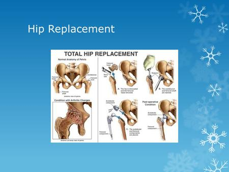 Hip Replacement. The Prevalence Of Hip Replacement  Hip replacement now is very common as opposed to before  Its most common factor comes from Osteoarthritis.