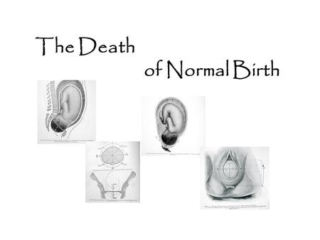 "The Death of Normal Birth. Medical Transformation of normal birth into a surgical procedure in the 20th Century ""performed"" by obstetrical surgeons mother."
