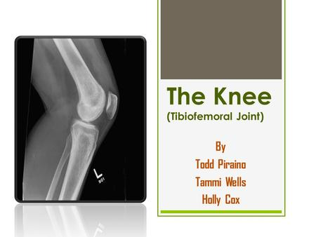 The Knee (Tibiofemoral Joint)