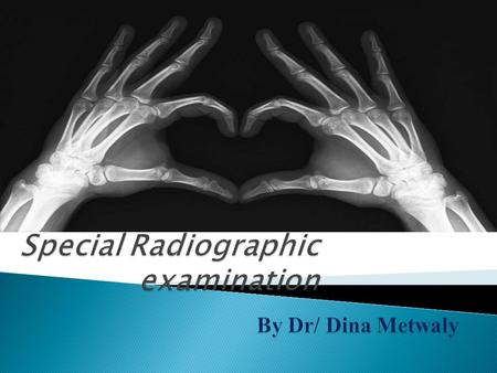  General Radiography refers to procedures used to image chest, bones, gastrointestinal (GI) tract, etc.  The following exams fall under General Radiology.