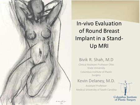 In-vivo Evaluation of Round Breast Implant in a Stand- Up MRI Bivik R. Shah, M.D Clinical Assistant Professor Ohio State University Columbus Institute.