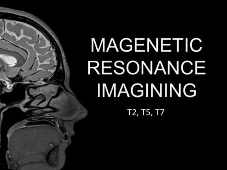 MAGENETIC RESONANCE IMAGINING T2, T5, T7. History Discovered in the 1930's Originally used in spectroscopy Was the topic of research for a noble prize.