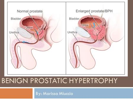 Benign Prostatic Hypertrophy