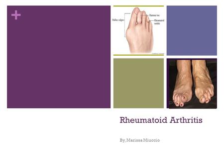 + Rheumatoid Arthritis By, Marissa Miuccio. + Definition What is it Rheumatoid arthritis is a chronic inflammatory disorder that typically affects the.