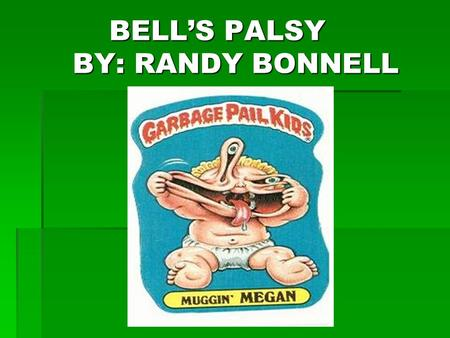 BELL'S PALSY BY: RANDY BONNELL BELL'S PALSY BY: RANDY BONNELL.