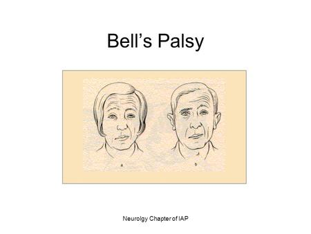 Neurolgy Chapter of IAP Bell's Palsy. Neurolgy Chapter of IAP Bell's Palsy Characterized by: –Peripheral facial paralysis –Acute benign cranial polyneuritis.