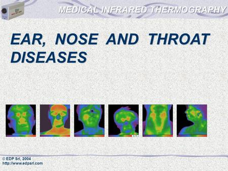 © EDP Srl, 2004  EAR, NOSE AND THROAT DISEASES.