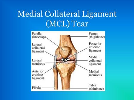 Medial Collateral Ligament (MCL) Tear. Development of MCL Tear A valgus force to the knee while bearing weight can put enough stress on the MCL to tear.