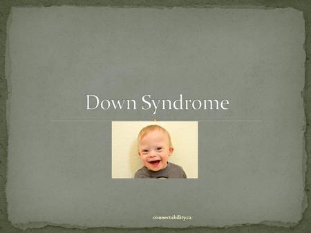 Down Syndrome connectability.ca.