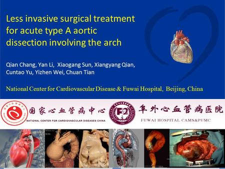 Less invasive surgical treatment for acute type A aortic dissection involving the arch Qian Chang, Yan Li, Xiaogang Sun, Xiangyang Qian, Cuntao Yu, Yizhen.