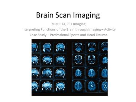 Brain Scan Imaging MRI, CAT, PET Imaging Interpreting Functions of the Brain through Imaging – Activity Case Study – Professional Sports and Head Trauma.