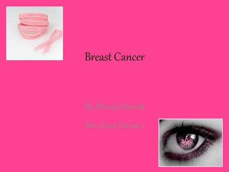 Breast Cancer By: Marina Barnett Mrs. Evan Period 2.