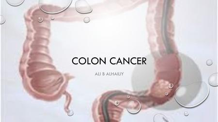 COLON CANCER ALI B ALHAILIY. COLORECTAL CANCER COLORECTAL CANCER, ALSO KNOWN AS COLON CANCER, RECTAL CANCER, IS A CANCER FROM UNCONTROLLED CELL GROWTH.