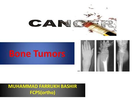 Bone Tumors MUHAMMAD FARRUKH BASHIR FCPS(ortho). General considerations Primary bone tumors are much less than secondary tumors. All age groups affected,
