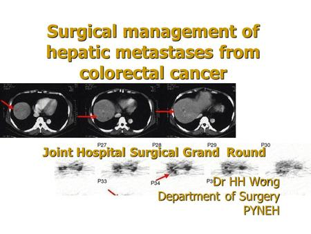 Surgical management of hepatic metastases from colorectal cancer Joint Hospital Surgical Grand Round Dr HH Wong Department of Surgery PYNEH.