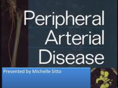 Presented by Michelle Sitto. The term peripheral vascular disease is commonly used to refer to peripheral artery disease (PAD), meaning narrowing or occlusion.