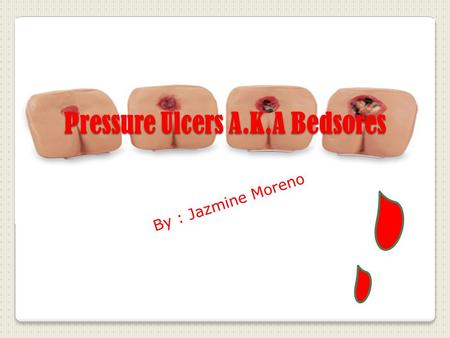 Pressure Ulcers A.K.A Bedsores By : Jazmine Moreno.