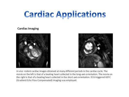 Cardiac Imaging In vivo rodent cardiac images obtained at many different periods in the cardiac cycle. The movie on the left is that of a beating heart.