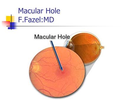 Macular Hole F.Fazel:MD. Pathophysiology of MH Trauma Laser treatment Cystoid macular edema Inflammation Retinal vascular disease Retinal detachment.