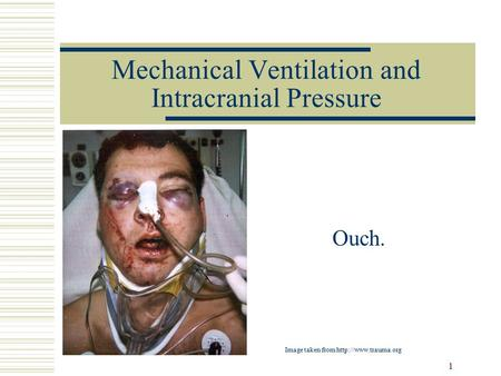 1 Mechanical Ventilation and Intracranial Pressure Ouch. Image taken from