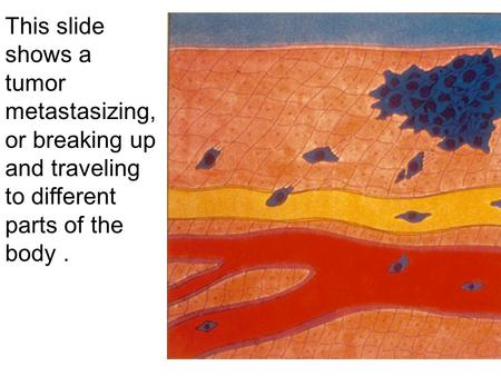 This slide shows a tumor metastasizing, or breaking up and traveling to different parts of the body.