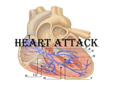 HEART ATTACK. DEFINITION The death of the cells in the area of the heart muscle where blood flow is obstructed can lead to heart attack. FACTS - approximately.