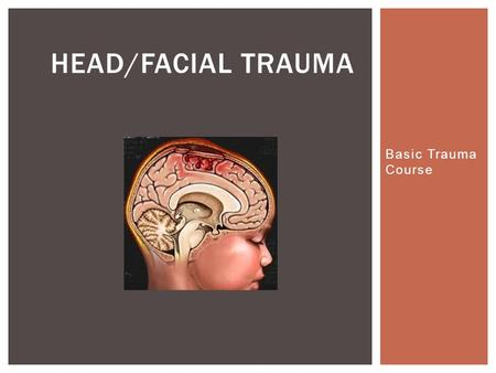 Basic Trauma Course HEAD/FACIAL TRAUMA.  Head injuries are most often caused by Motor Vehicle Crashes (MVC), especially in teens and young adults. 