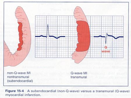 ECG Changes in Acute Myocardial Infarction Myocardial Ischemia –Symmetrical T wave inversion or elevation and ST segment elevation or depression.