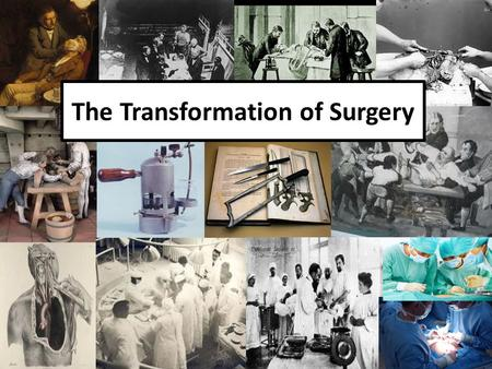The Transformation of Surgery The Really Bloody History of Surgery After the summer holidays, we need to refresh our memory about the history of surgery.