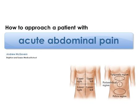 acute abdominal pain How to approach a patient with Andrew McGovern