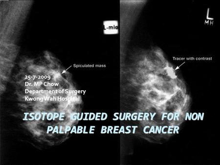ISOTOPE GUIDED SURGERY FOR NON PALPABLE BREAST CANCER
