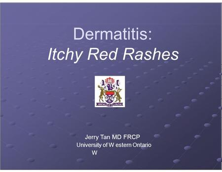 Dermatitis: Itchy Red Rashes Jerry Tan MD FRCP University of W estern Ontario W.