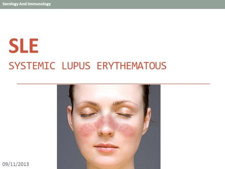 SLE SYSTEMIC LUPUS ERYTHEMATOUS 09/11/2013. SLE  An autoimmune disease of the body's connective tissues, primarily the immune system attacks parts of.