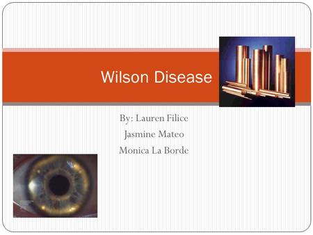 By: Lauren Filice Jasmine Mateo Monica La Borde Wilson Disease.